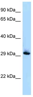 Western blot - Anti-RAB33B antibody (ab122930)