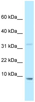 Western blot - Anti-HMGN2 antibody (ab122935)