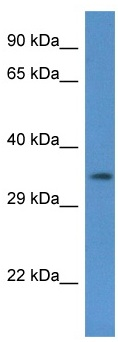 Western blot - Anti-COQ5 antibody (ab122936)