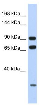 Western blot - Anti-ARMC4  antibody (ab122938)