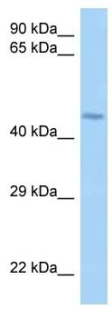 Western blot - Anti-LRRFIP2 antibody (ab122940)
