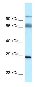 Western blot - Anti-PRRT1 antibody (ab122943)