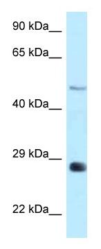 Western blot - Anti-MAG1 antibody (ab122948)