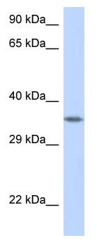 Western blot - Anti-Crk p38 antibody (ab122949)