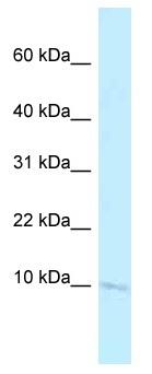 Western blot - Anti-BANF2 antibody (ab122950)