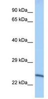Western blot - Anti-Methyltransferase-like protein 10 antibody (ab122963)