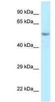 Western blot - Anti-FAM114A2 antibody (ab122965)