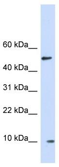 Western blot - Anti-ERH antibody (ab122966)