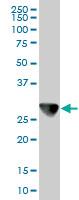 Western blot - Anti-CAPZB antibody [1H1] (ab122980)