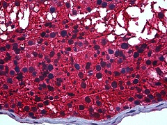Immunohistochemistry (Formalin/PFA-fixed paraffin-embedded sections) - Anti-CAPZB antibody [1H1] (ab122980)