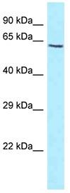 Western blot - Anti-KIAA1279 antibody (ab122985)