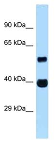 Western blot - Anti-ASB4 antibody (ab122991)