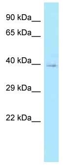 Western blot - Anti-CFHL1 antibody (ab122992)
