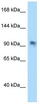 Western blot - Anti-PARP8 antibody (ab122993)