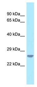 Western blot - Anti-C18orf1 antibody (ab122994)