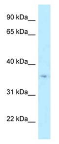 Western blot - Anti-HSD17B7 antibody (ab122995)