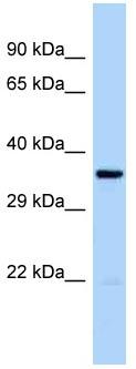 Western blot - Anti-CCRK antibody (ab122996)