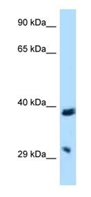 Western blot - Anti-CD272 antibody (ab122998)