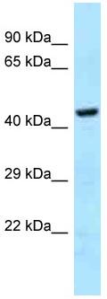 Western blot - Anti-GHDC antibody (ab123002)