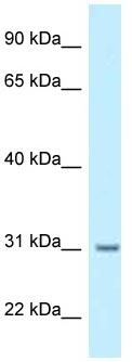 Western blot - Anti-BPHL antibody (ab123003)