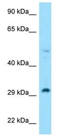Western blot - Anti-RPL7 antibody (ab123004)