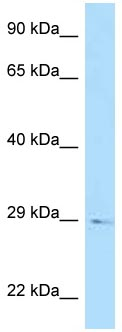 Western blot - Anti-RGS20 antibody (ab123007)