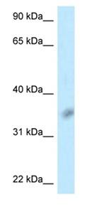 Western blot - Anti-CD272 antibody (ab123008)