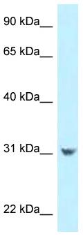 Western blot - Anti-CCDC102B antibody (ab123013)