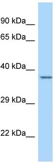 Western blot - Anti-LRRC39 antibody (ab123015)