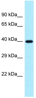 Western blot - Anti-Protein phosphatase 1 inhibitor 3C antibody (ab123016)