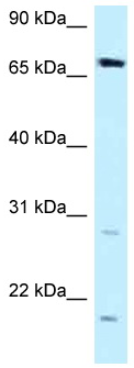Western blot - Anti-dystrophia myotonica containing WD repeat motif antibody (ab123017)