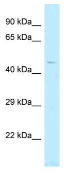 Western blot - Anti-TBC1D20 antibody (ab123021)