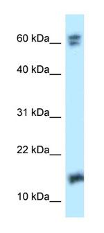 Western blot - Anti-NUDT2 antibody (ab123027)