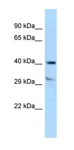 Western blot - Anti-TTPA antibody (ab123030)