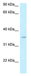 Western blot - Anti-GPN3 antibody (ab123038)