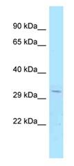 Western blot - Anti-PRR6 antibody (ab123041)