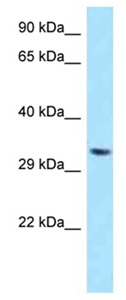 Western blot - Anti-TWISTNB antibody (ab123042)