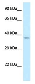 Western blot - Anti-C2orf43 antibody (ab123043)
