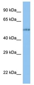 Western blot - Anti-VANGL1 antibody (ab123045)