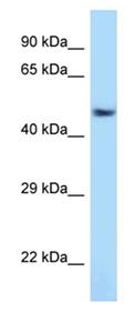 Western blot - Anti-ATF7 antibody (ab123046)