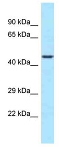 Western blot - Anti-WDR74 antibody (ab123047)