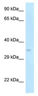 Western blot - Anti-p35 antibody (ab123048)