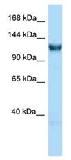 Western blot - Anti-gtf3c3 antibody (ab123053)