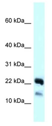 Western blot - Anti-NDUFB10 antibody (ab123055)