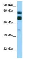 Western blot - Anti-C16orf70 antibody (ab123079)