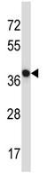 Western blot - Anti-NECAB1 antibody (ab123082)