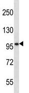 Western blot - Anti-SLC6A17 antibody (ab123084)