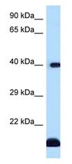 Western blot - Anti-CD1d antibody (ab123095)