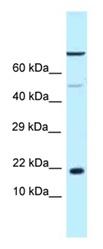 Western blot - Anti-LOC683991 antibody (ab123097)