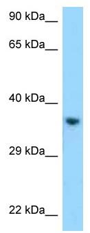 Western blot - Anti-KIR2DL1 antibody (ab123107)